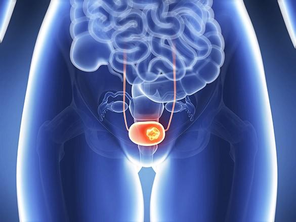 Лечение рака мочевого пузыря