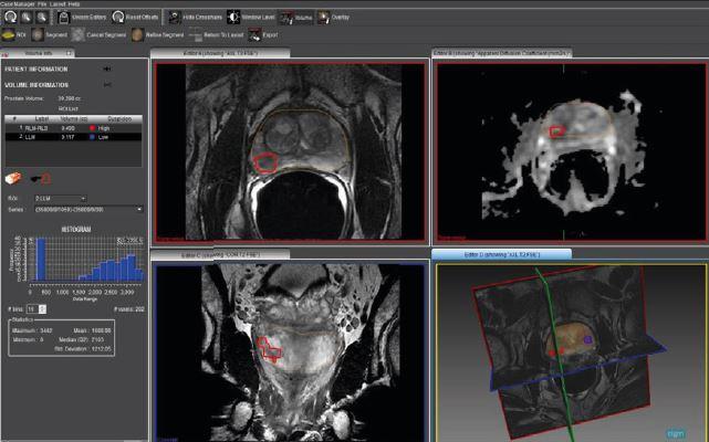 MR-TRUS FUSION: Биопсия для целенаправленного лечения рака предстательной железы — лечение в ведущей клинике Турции