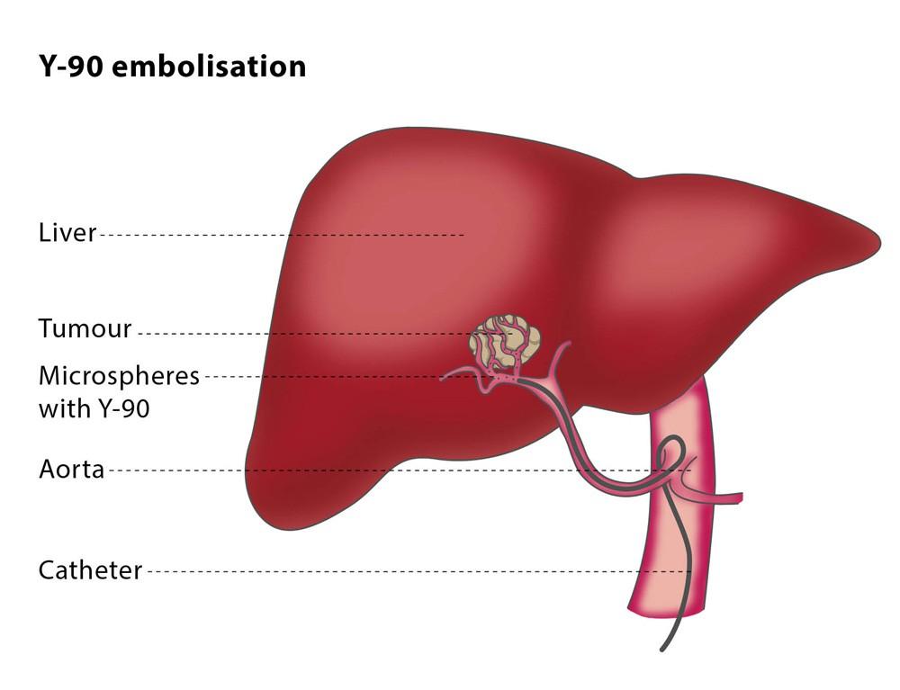 Радиоэмболизация для первичного и метастатического рака печени — лечение в ведущей клинике Турции
