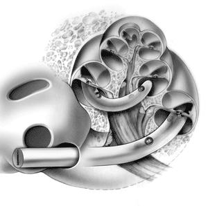 кохлеарная имплантация 3