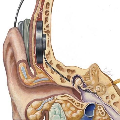 кохлеарная имплантация 5