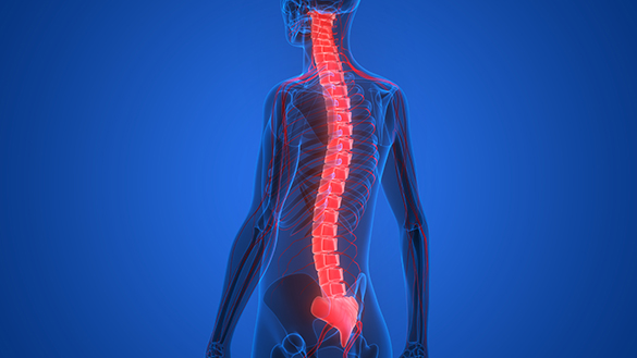 Лечение опухолей спинного мозга в Турции