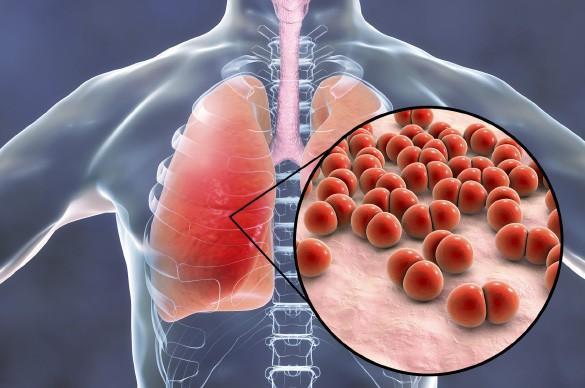 Что такое пневмония