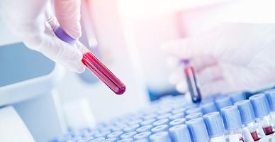 Можно ли диагностировать рак по анализу крови? — лечение в ведущей клинике Турции
