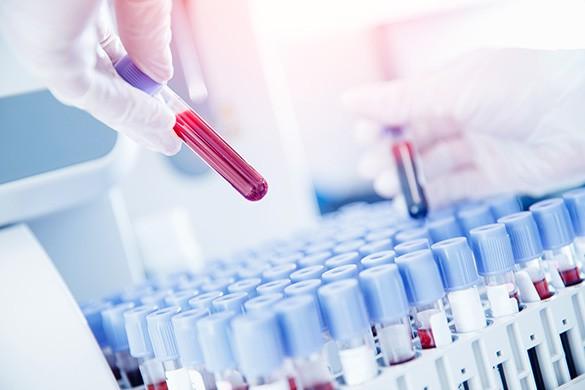 Анализ крови при раке